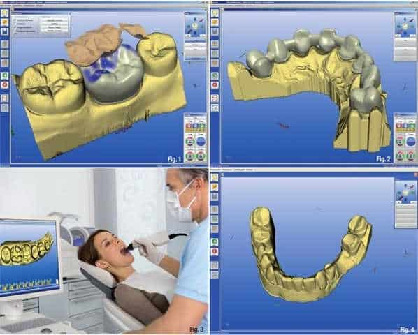Dentistry Benefiting From 3D Printing And CAD/CAM Technology